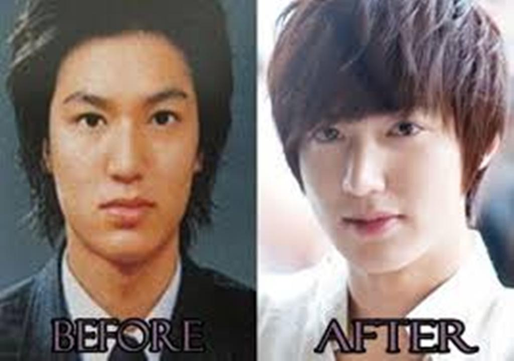Lee Min Ho Plastic Surgery Rumors Resurface